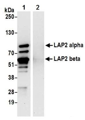Immunoprecipitation - Anti-LAP2 alpha antibody - N-terminal (ab226342)