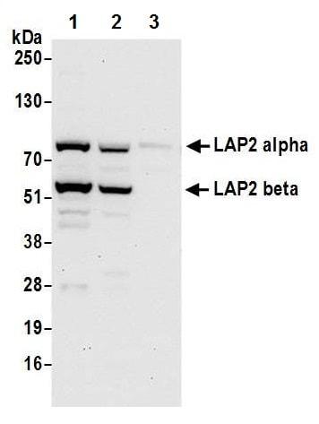 Western blot - Anti-LAP2 alpha antibody - N-terminal (ab226342)