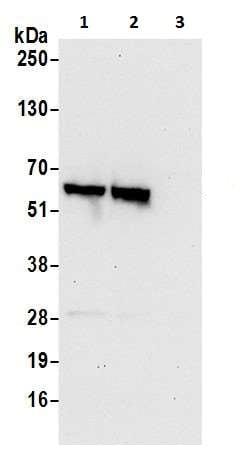 Western blot - Anti-BAIAP2L1/IRTKS antibody (ab226344)