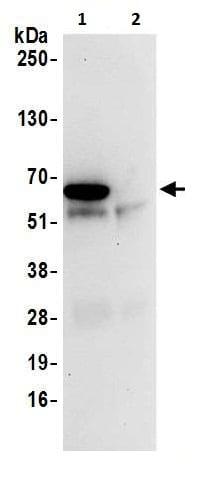 Immunoprecipitation - Anti-BAIAP2L1/IRTKS antibody (ab226344)
