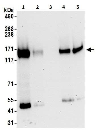 Western blot - Anti-CD130 (gp130) antibody - C-terminal (ab226346)