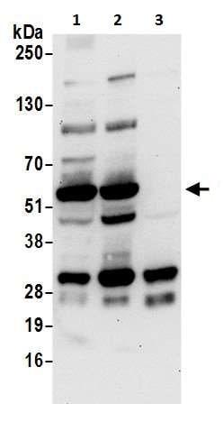 Western blot - Anti-LAP2 antibody (ab226347)