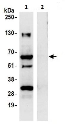 Immunoprecipitation - Anti-LAP2 antibody (ab226347)
