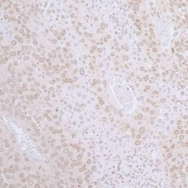 Immunohistochemistry (Formalin/PFA-fixed paraffin-embedded sections) - Anti-LAP2 antibody (ab226348)