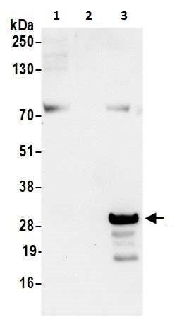 Western blot - Anti-D4 GDI antibody (ab226350)