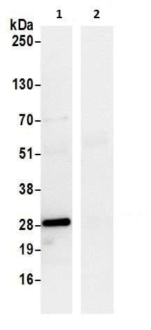 Immunoprecipitation - Anti-D4 GDI antibody (ab226350)