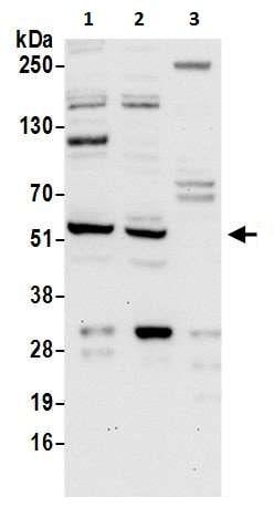 Western blot - Anti-LAP2 antibody (ab226352)
