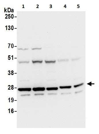 Western blot - Anti-GLO1 antibody - N-terminal (ab226353)