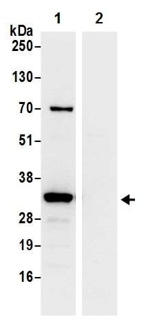 Immunoprecipitation - Anti-RPS3A antibody - N-terminal (ab226356)