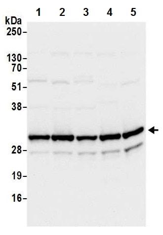 Western blot - Anti-RPS3A antibody - N-terminal (ab226356)