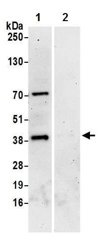 Immunoprecipitation - Anti-Dematin antibody (ab226357)