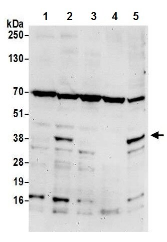 Western blot - Anti-Dematin antibody (ab226357)