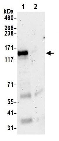 Immunoprecipitation - Anti-NBR1 antibody - C-terminal (ab226360)