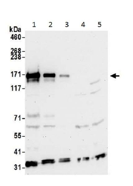 Western blot - Anti-Integrin alpha 4/CD49D antibody (ab226362)