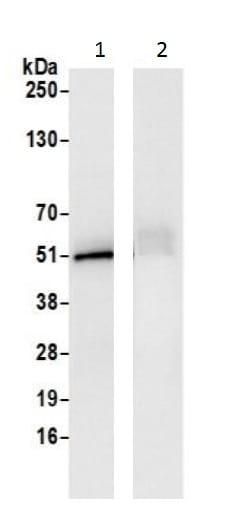 Immunoprecipitation - Anti-FH/Fumarase antibody (ab226365)