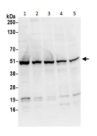 Western blot - Anti-FH/Fumarase antibody (ab226365)