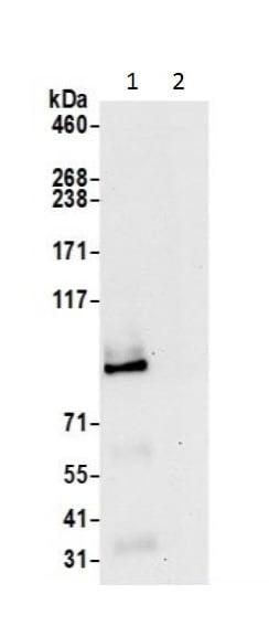 Immunoprecipitation - Anti-COG7 antibody (ab226366)