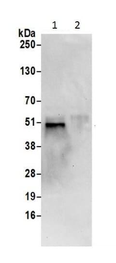 Immunoprecipitation - Anti-CDC123 antibody (ab226369)