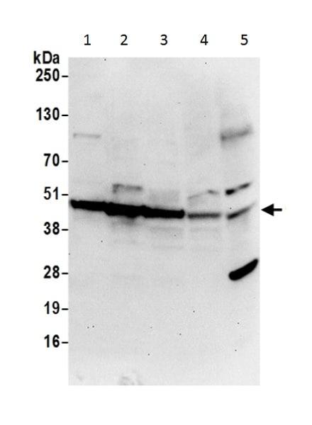 Western blot - Anti-CDC123 antibody (ab226369)