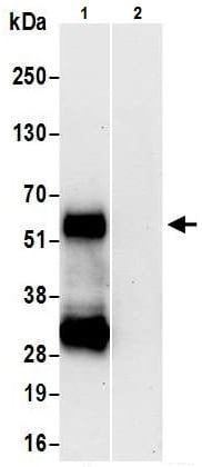 Immunoprecipitation - Anti-LTBR antibody (ab226377)