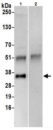 Immunoprecipitation - Anti-PPA2 antibody (ab226378)