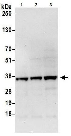 Western blot - Anti-PPA2 antibody (ab226378)