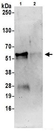 Immunoprecipitation - Anti-FOXA1 antibody - C-terminal (ab226380)