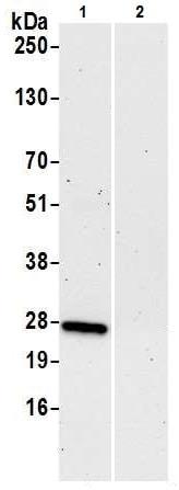 Immunoprecipitation - Anti-RPL10A antibody (ab226381)