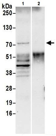 Immunoprecipitation - Anti-SLP76 antibody (ab226382)