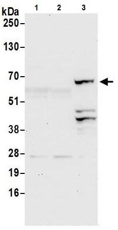 Western blot - Anti-SLP76 antibody (ab226382)