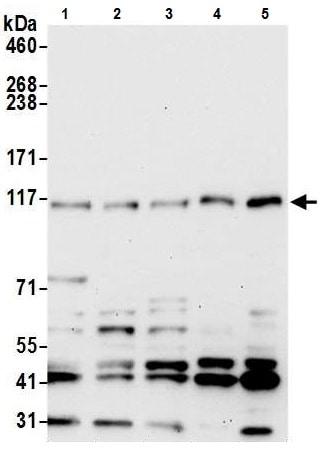 Western blot - Anti-ANKFY1 antibody - N-terminal (ab226384)
