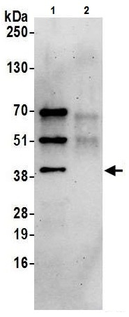 Immunoprecipitation - Anti-Hsp40 antibody (ab226387)