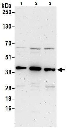 Western blot - Anti-Hsp40 antibody (ab226387)