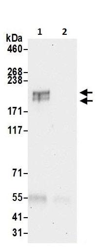 Immunoprecipitation - Anti-Gli2 antibody (ab226390)