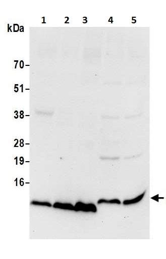 Western blot - Anti-ATP5I antibody (ab226393)
