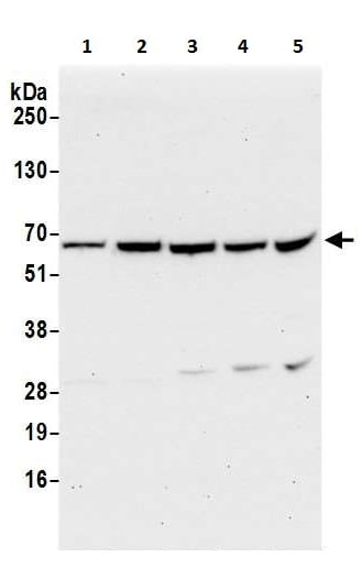 Western blot - Anti-Tyrosyl tRNA synthetase/TyrRS antibody - N-terminal (ab226398)