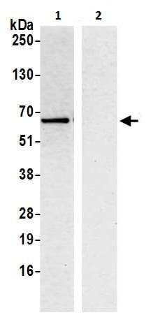 Immunoprecipitation - Anti-Tyrosyl tRNA synthetase/TyrRS antibody - N-terminal (ab226398)