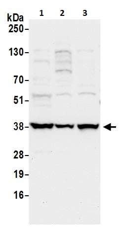 Western blot - Anti-FDPS/FPS antibody (ab226399)