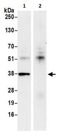 Immunoprecipitation - Anti-FDPS/FPS antibody (ab226399)