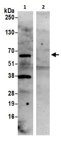 Immunoprecipitation - Anti-COASY antibody (ab226400)