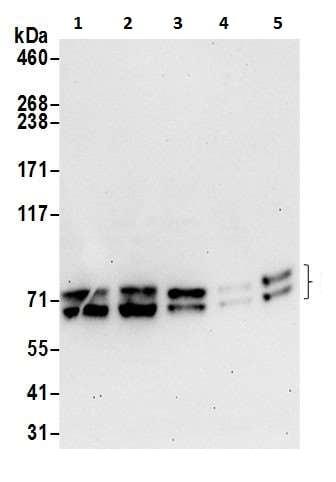 Western blot - Anti-PICALM antibody (ab226411)