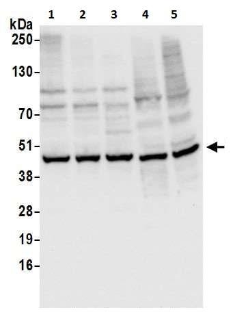 Western blot - Anti-Cyclophilin 40 antibody (ab226415)