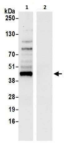 Immunoprecipitation - Anti-Cyclophilin 40 antibody (ab226415)