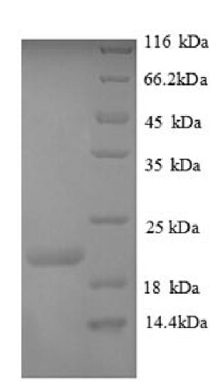 SDS-PAGE - Recombinant Human Plexin A1 protein (His tag) (ab226422)