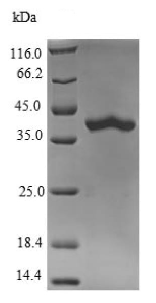 SDS-PAGE - Recombinant Mouse RAB10 protein (His tag) (ab226423)