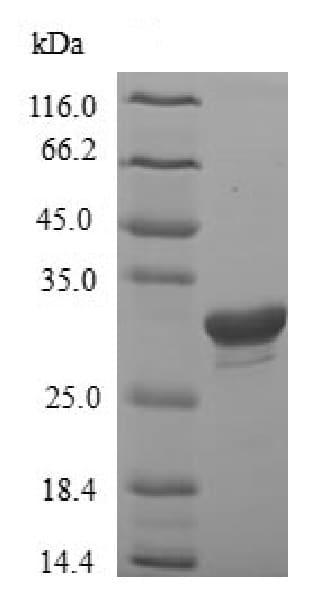 SDS-PAGE - Recombinant Rat IGFBP1 protein (ab226424)