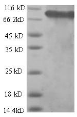 SDS-PAGE - Recombinant Human SDHA protein (His tag) (ab226453)