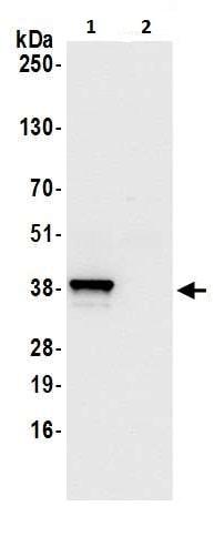 Immunoprecipitation - Anti-Annexin A1/ANXA1 antibody (ab226457)