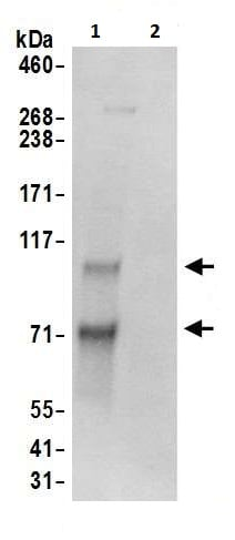 Immunoprecipitation - Anti-ADAM9 antibody (ab226459)