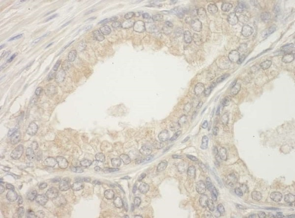Immunohistochemistry (Formalin/PFA-fixed paraffin-embedded sections) - Anti-Bad antibody (ab226461)